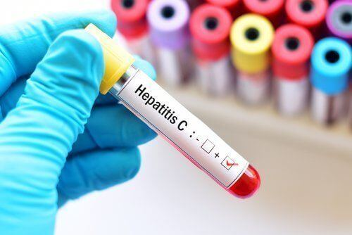Medical Marijuana for Hepatitis C