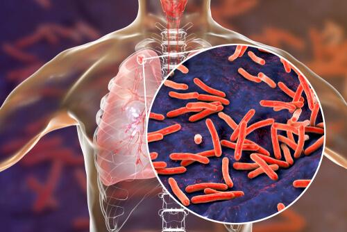 Can Cannabis Treat TB?