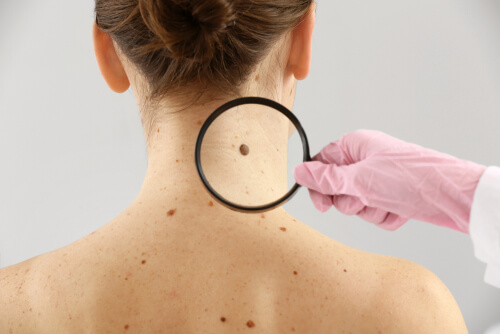 Is Cannabis an Effective Treatment Option for Skin Cancer?